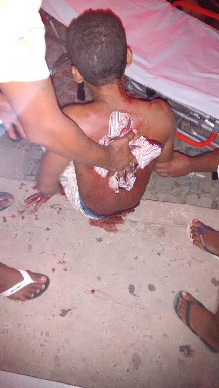 Homem é atingido com sete golpes de faca após briga em bar