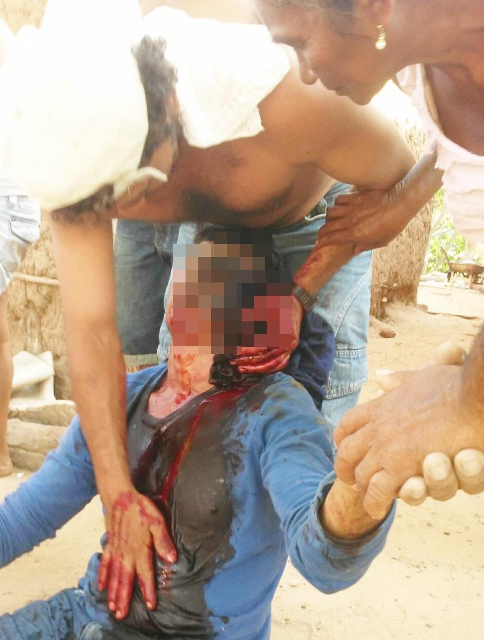 Homem leva tiro acidental de espingarda e morre em Murici dos Portelas