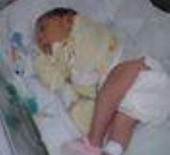 Registrado o primeiro caso de microcefalia em José de Freitas