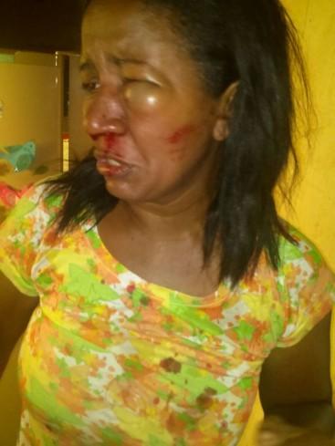 Ex-vereadora é agredida por vice-prefeito e faz denúncia por espancamento e racismo_01