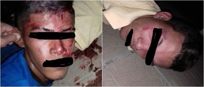 Dupla é capturada e espancada em Parnaíba, após cometer assalto em pizzaria