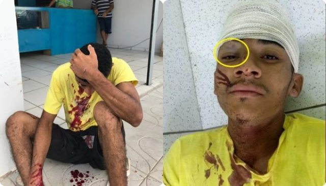 Jovem é agredido após furtar frascos de shampoo em uma farmácia de Parnaíba