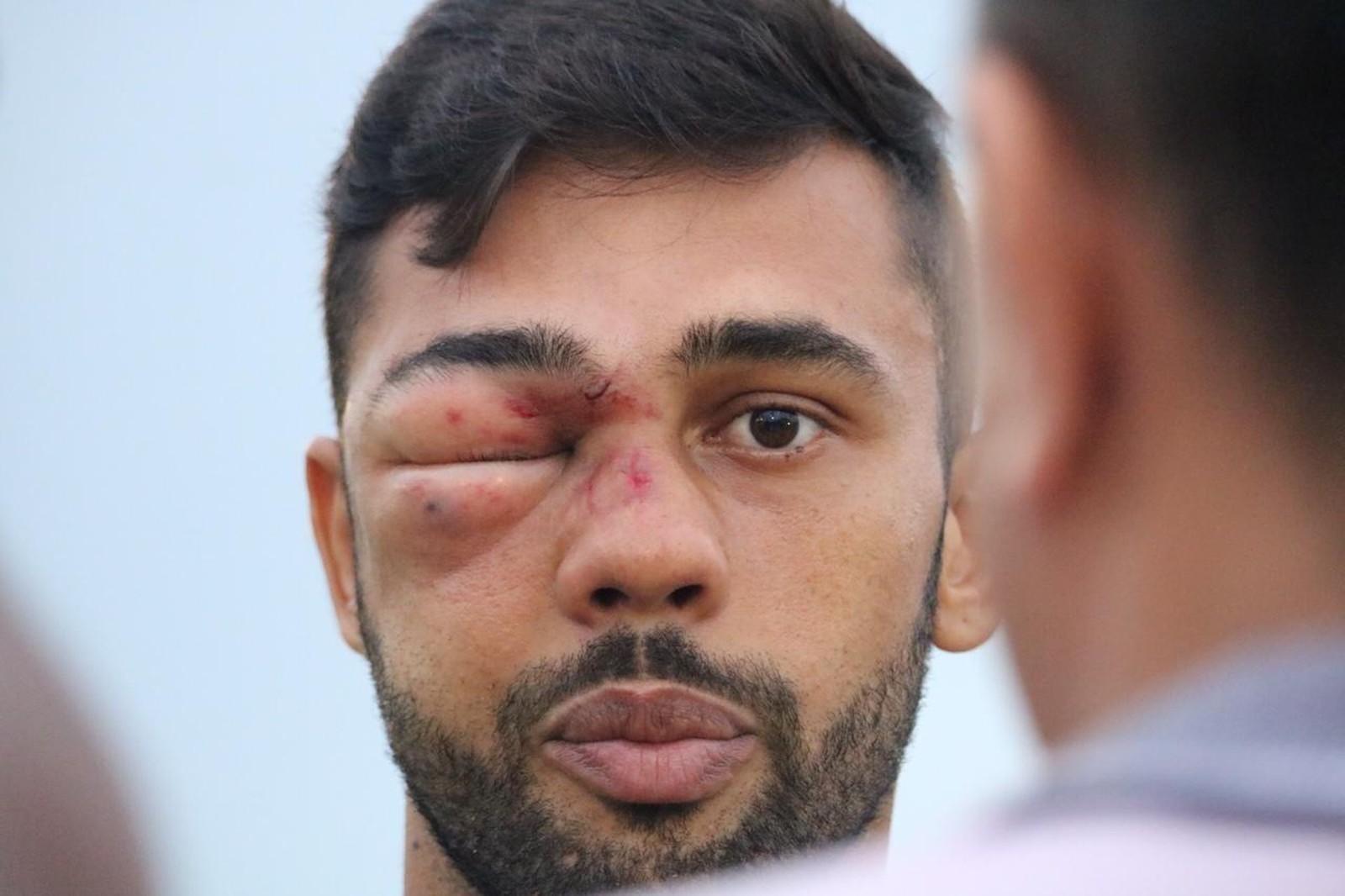 """Jogador leva chute em cheio no olho, desmaia e fica irreconhecível: """"Não lembro""""; veja"""
