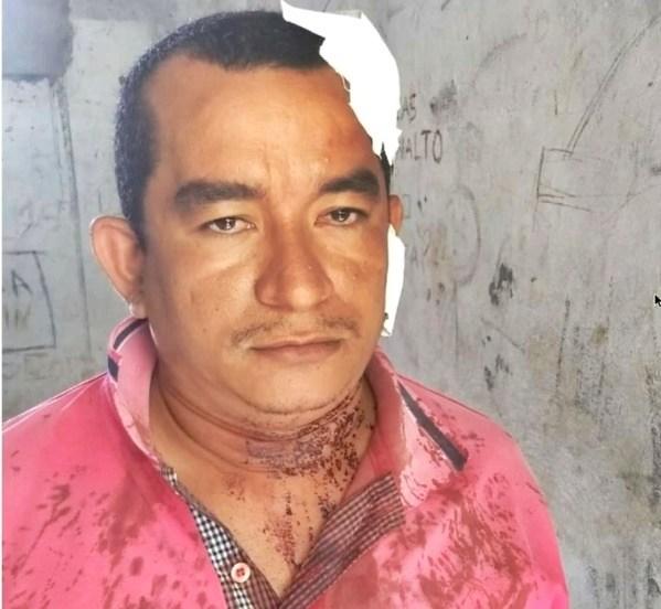 Homem é linchado e preso após cometer atos libidinosos em Parnaíba