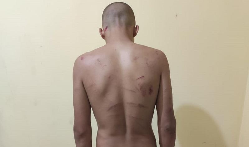 Homem tortura namorado com facão em Eliseu Martins