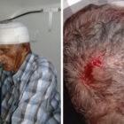 Idoso de 82 anos é agredido por criminosos em Buriti dos Lopes